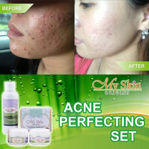 Acne-Set-My-Skin-Origins